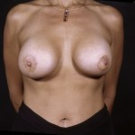 Breast Augmentation 37 After Photo - 7