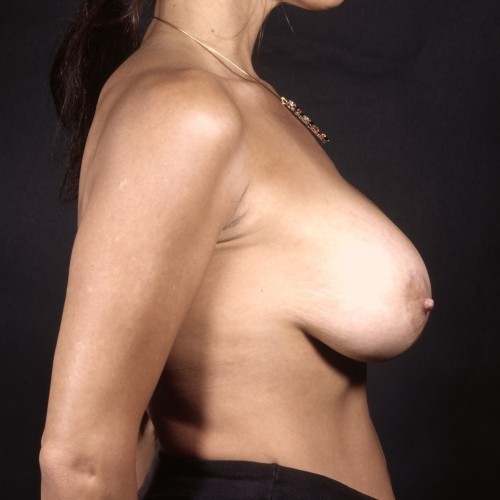 Breast Augmentation 37 After Photo