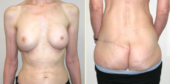 Breast Reconstruction Patient by Dr. Boyd