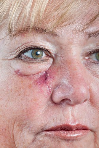 Mature woman with scar and spitting suture one week after Mohs surgery for Basal Cell Carcinoma