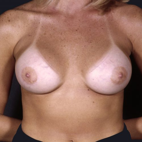Breast Augmentation 38 After Photo