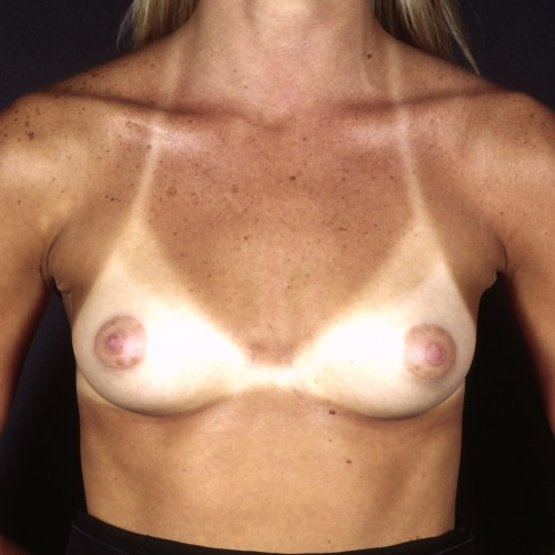Breast Augmentation 38 Before Photo
