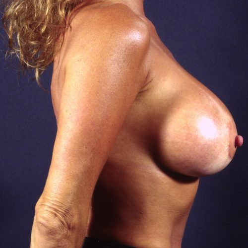 Breast Revision 4 After Photo