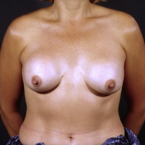 Breast Revision 5 Before Photo