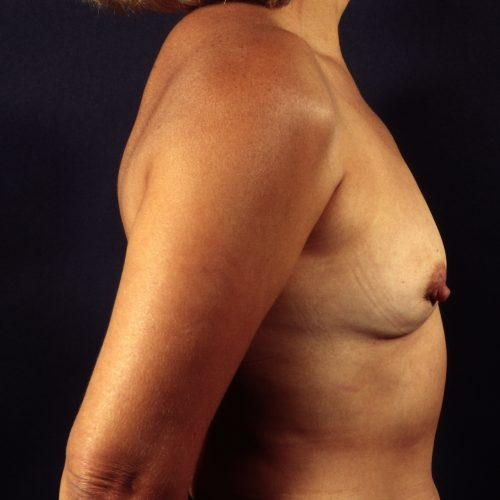Breast Revision 5 After Photo