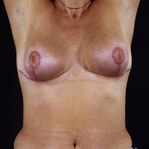Breast Revision 3 After Photo