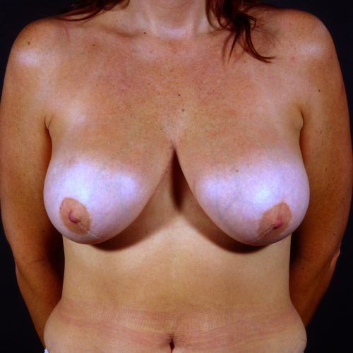Breast Revision 3 Before Photo