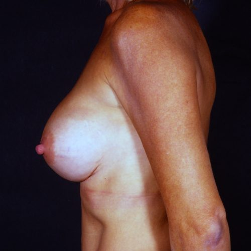 Breast Revision 4 Before Photo