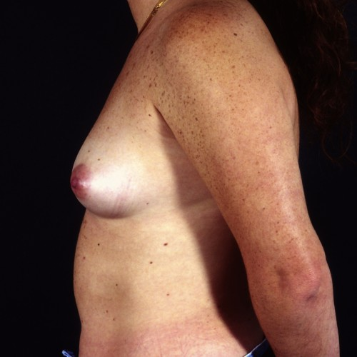 Breast Augmentation 39 Before Photo