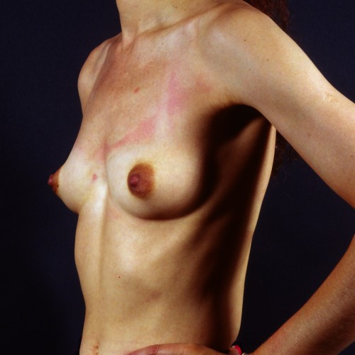 Breast Revision 6 After Photo