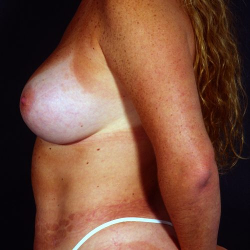 Breast Augmentation 39 After Photo