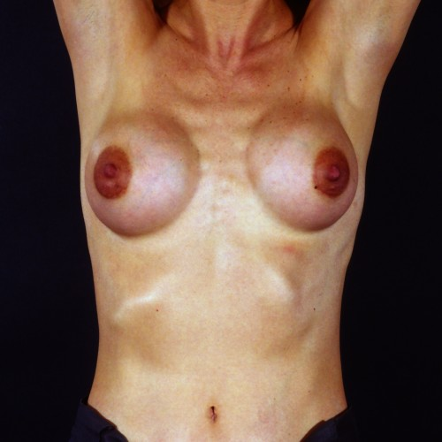 Breast Revision 6 Before Photo