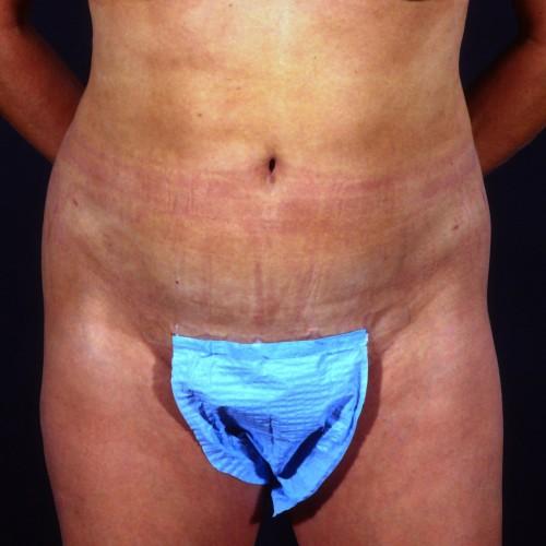 Liposuction Abdomen 1 After Photo