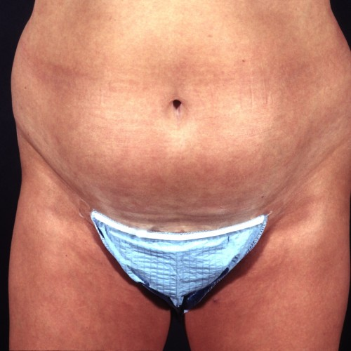 Liposuction Abdomen 1 Before Photo