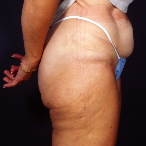 Liposuction 1x After Photo