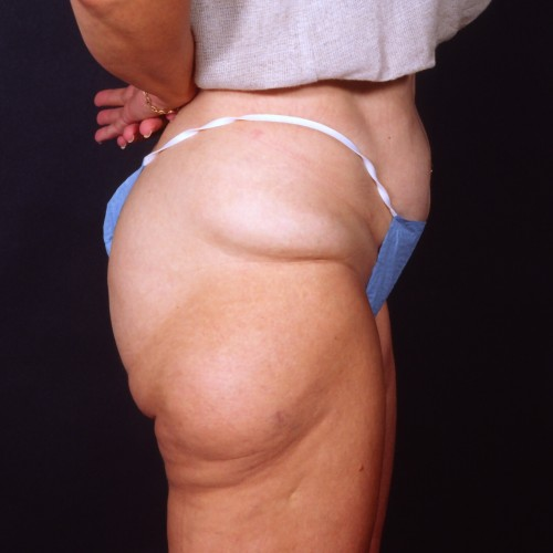 Liposuction 1x Before Photo