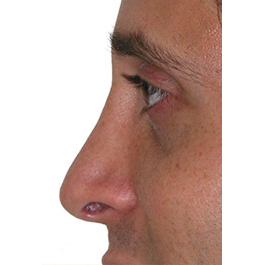 Rhinoplasty Revision 01 After Photo