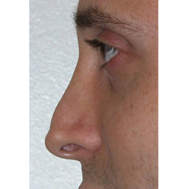 Rhinoplasty Revision 01 Before Photo