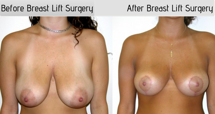 Breastlift5Post1-wpcf_500x500-img-blog