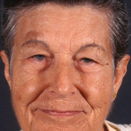 Blepharoplasty 100 Before Photo