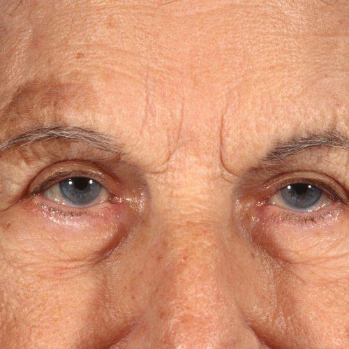 Blepharoplasty 100 After Photo