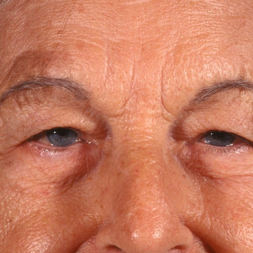 Blepharoplasty 100 Before Photo
