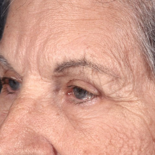 Blepharoplasty 100 After Photo