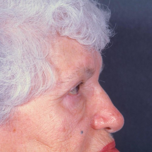 Blepharoplasty 102 After Photo