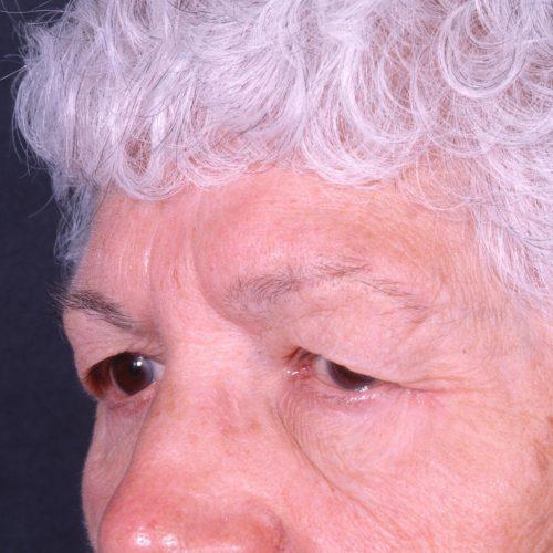 Blepharoplasty 102 Before Photo