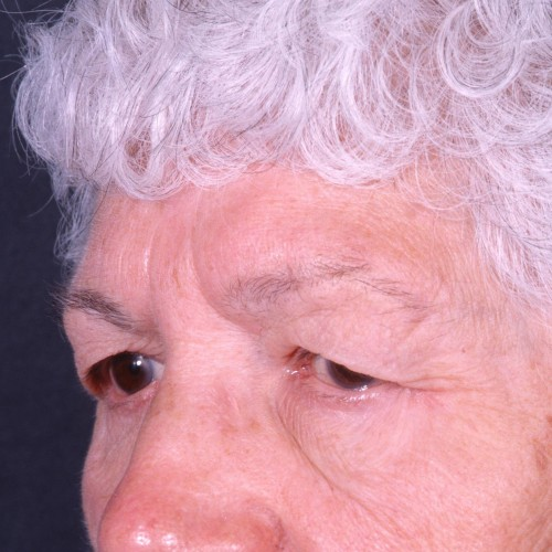 Blepharoplasty 102 Before Photo