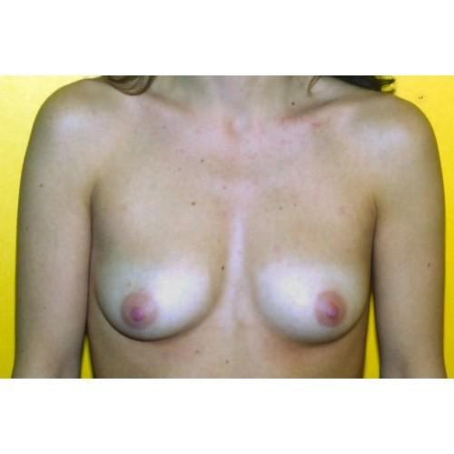 Submammary Breast Augmentation 2 Before Photo