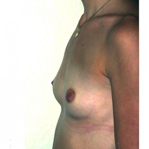 Prepectoral Breast Augmentation Before Photo