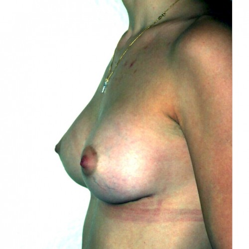 Prepectoral Breast Augmentation After Photo