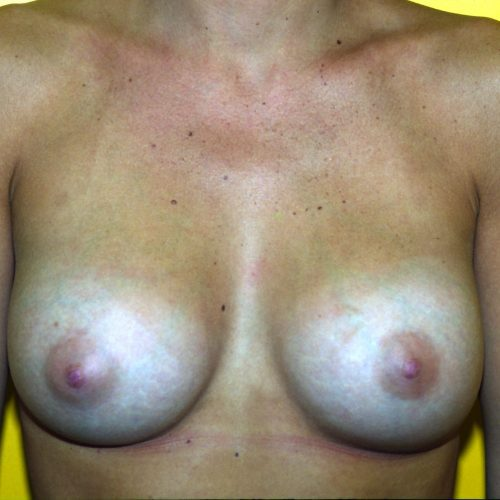 Submammary Breast Augmentation 2 After Photo