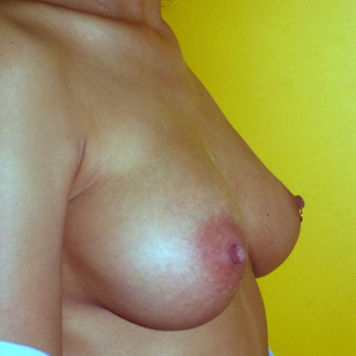 Prepectoral Breast Augmentation 3 After Photo