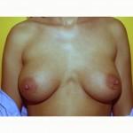 Prepectoral Breast Augmentation 3 After Photo - 3