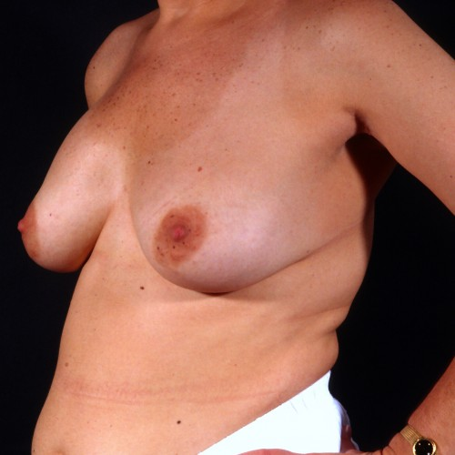Removal of Breast Implant with Lift Before Photo