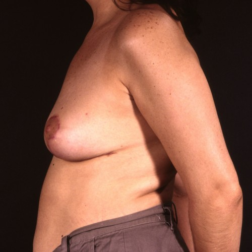 Removal of Breast Implant with Lift After Photo