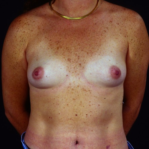 Breast Augmentation 101 Before Photo