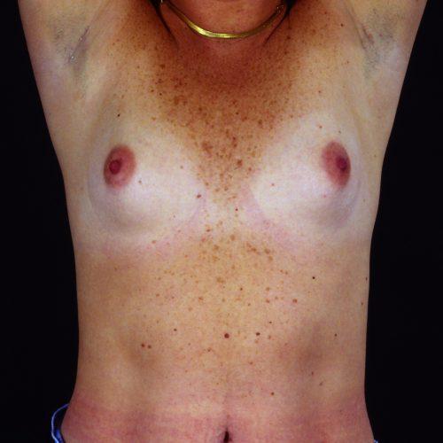 Breast Augmentation 101 Before Photo
