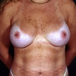 Breast Augmentation 101 After Photo - 4