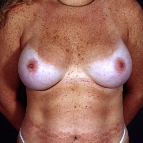 Breast Augmentation 101 After Photo