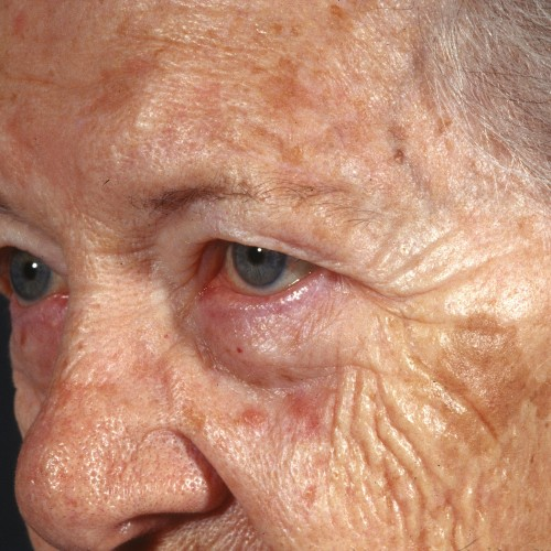 Blepharoplasty 101 Before Photo