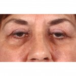 Blepharoplasty 231 After Photo - 4