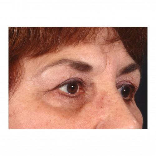 Blepharoplasty 231 After Photo