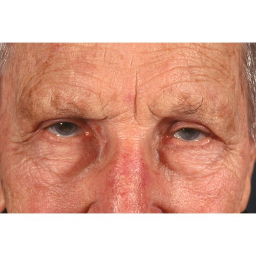 Blepharoplasty 322 After Photo