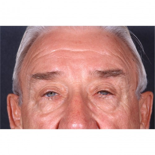 Blepharoplasty/Ptosis Correction 333 Before Photo