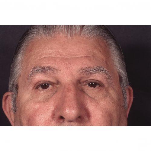 Blepharoplasty/Ptosis correction After Photo