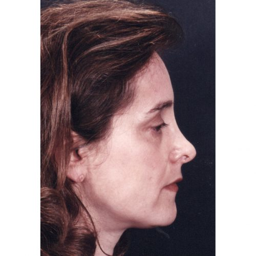 Rhinoplasty 200 After Photo