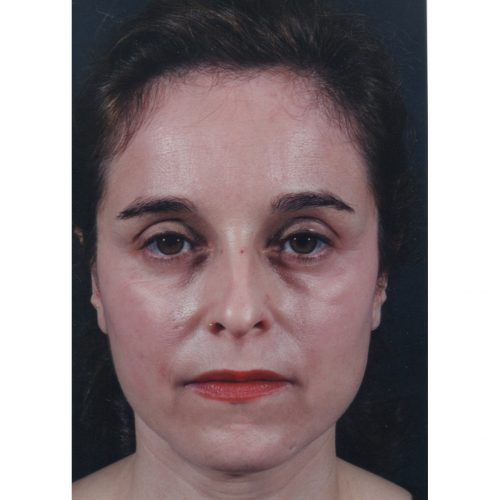 Rhinoplasty 200 Before Photo